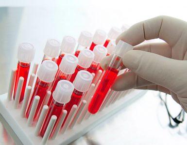 Kan Grubu Nasıl Belirlenir?