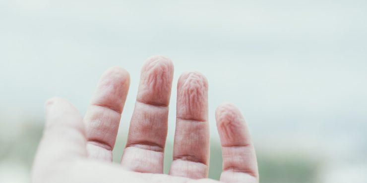 Banyodan Sonra Ellerimiz Niçin Buruşur?