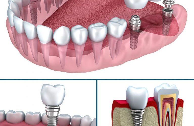 Hamilelikte diş implantı tedavisi yaptırmak riskli midir?