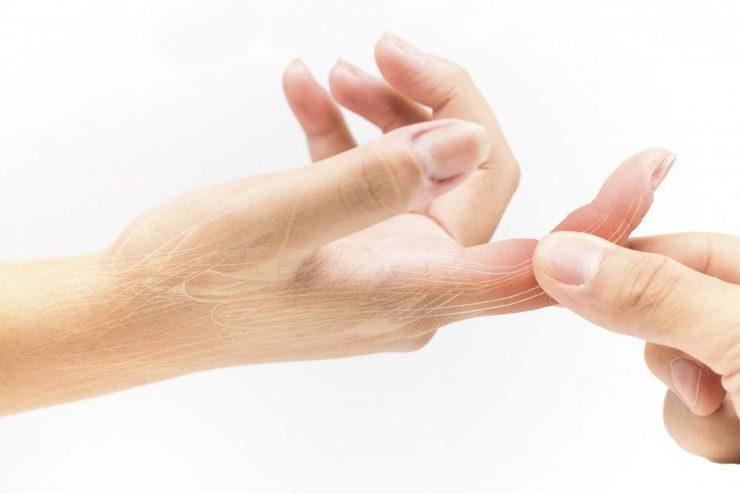 Parmak Burkulmasına Ne İyi Gelir?