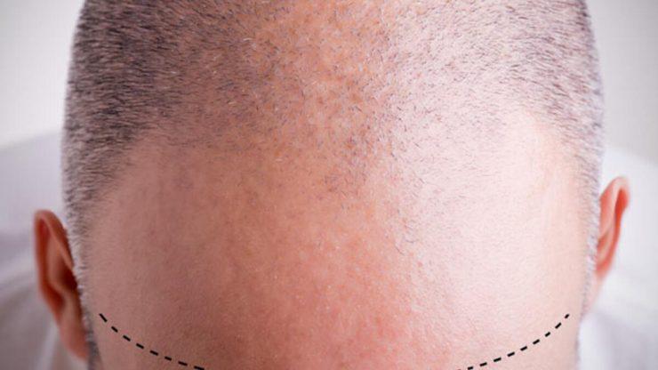Saç ekimi sonrası ne yapılmalı, ne tür bir bakım uygulamanız gerekebilir?